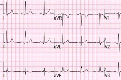 ElectroCardioGraph (ECG) Course